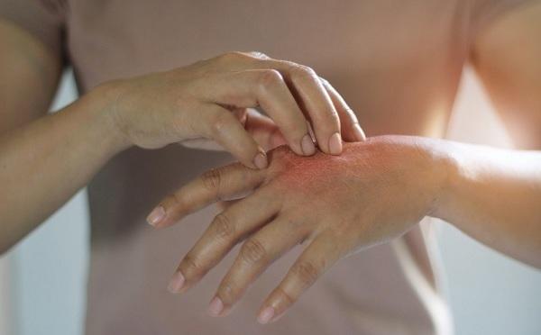 Безобидный симптом назвали возможным признаком серьезных заболеваний